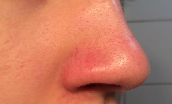 blachkead pore strip